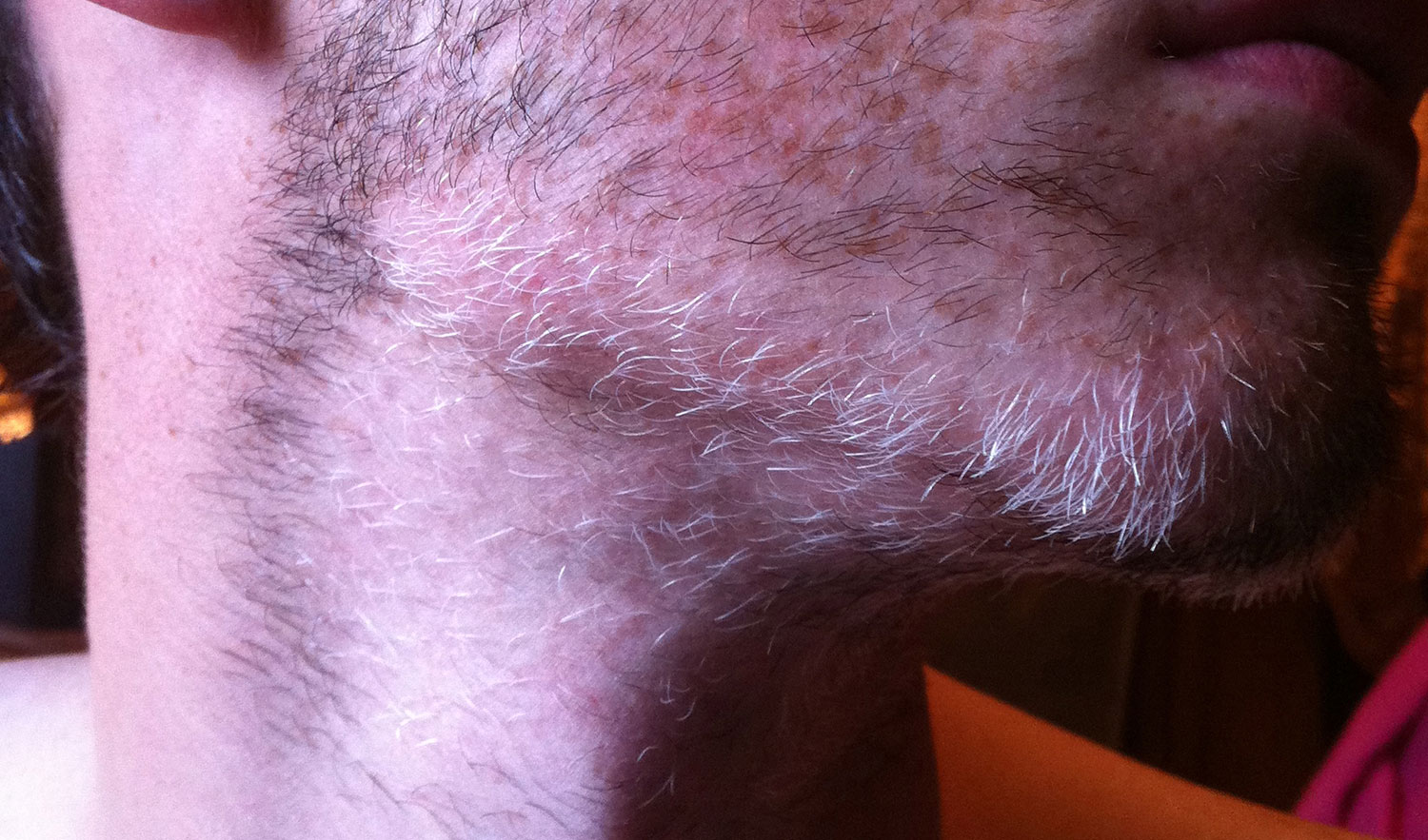 It was worse than this. Going grey at 21 sucked.